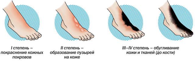 Ожог кипятком: первая помощь и эффективное лечение